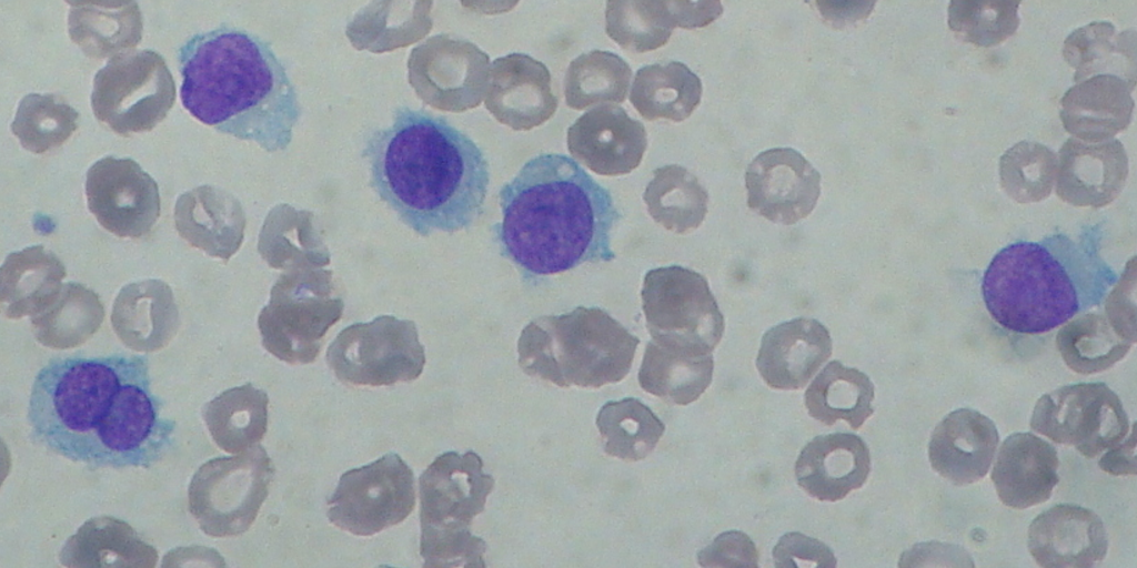 Hairy Cell Leukaemia