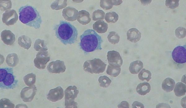 Hairy Cell Leukaemia